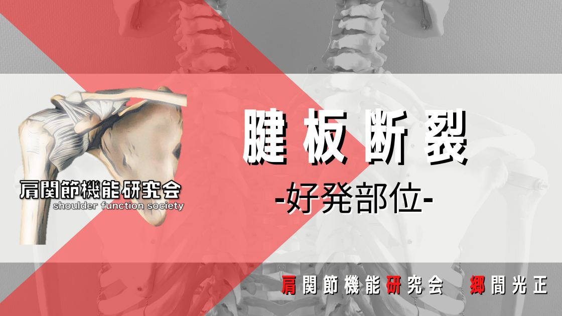 腱板断裂の好発部位